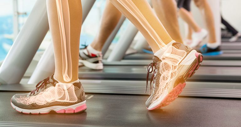 Chaussures de sport d'un sportif sur tapis de course avec vue du squelette